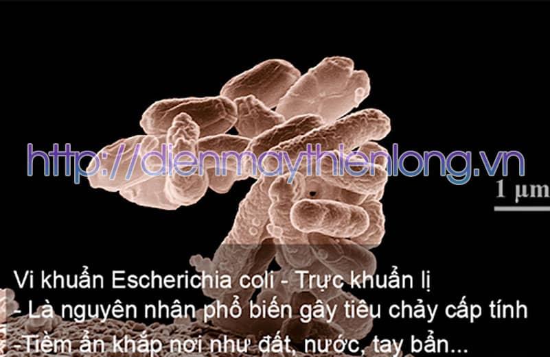 vi-khuan-e-coli-gay-ngo-doc-thuc-pham